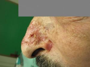 גידול מסוג BCC לפני ניתוח