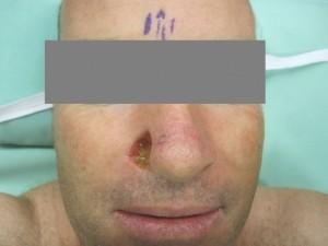 גידול BCC באף לפני ניתוח