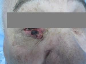 גידול בעפעף לפני ניתוח