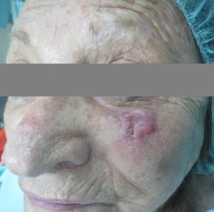 גידול SCC לפני ניתוח