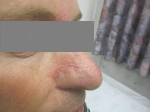 גידול BCC באף אחרי ניתוח מוס ושחזור