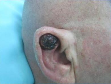 גידול scc באוזן לפני שחזור