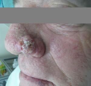 לפני ניתוח מוהס