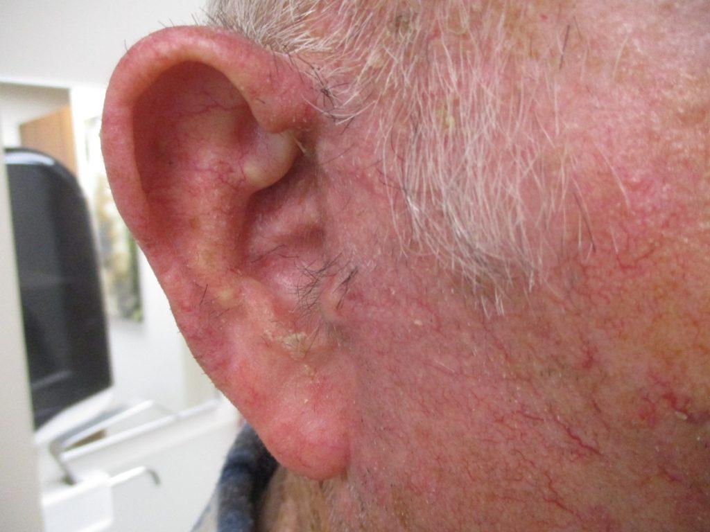 גידול בקדמת האוזן - לאחר ניתוח הסרת הגידול ושחזור