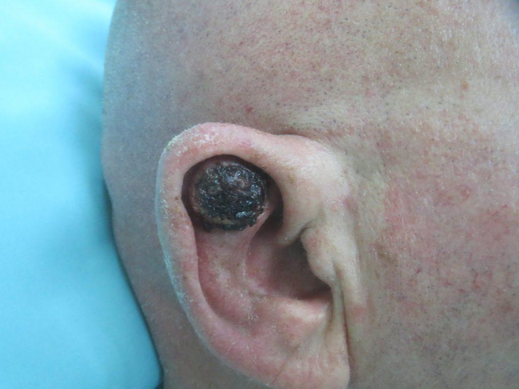 גידול סרטני באוזן - לפני ניתוח