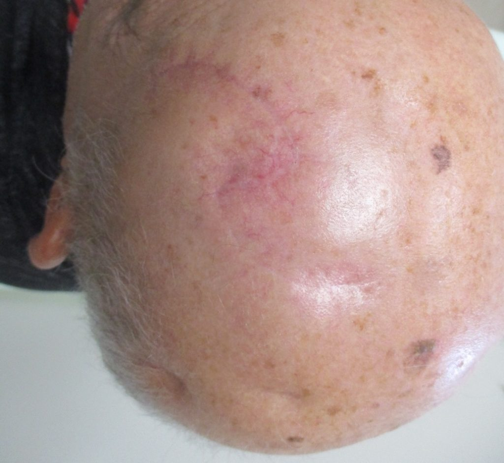גידול תאי קשקש בקרקפת - אחרי ניתוח מוהס