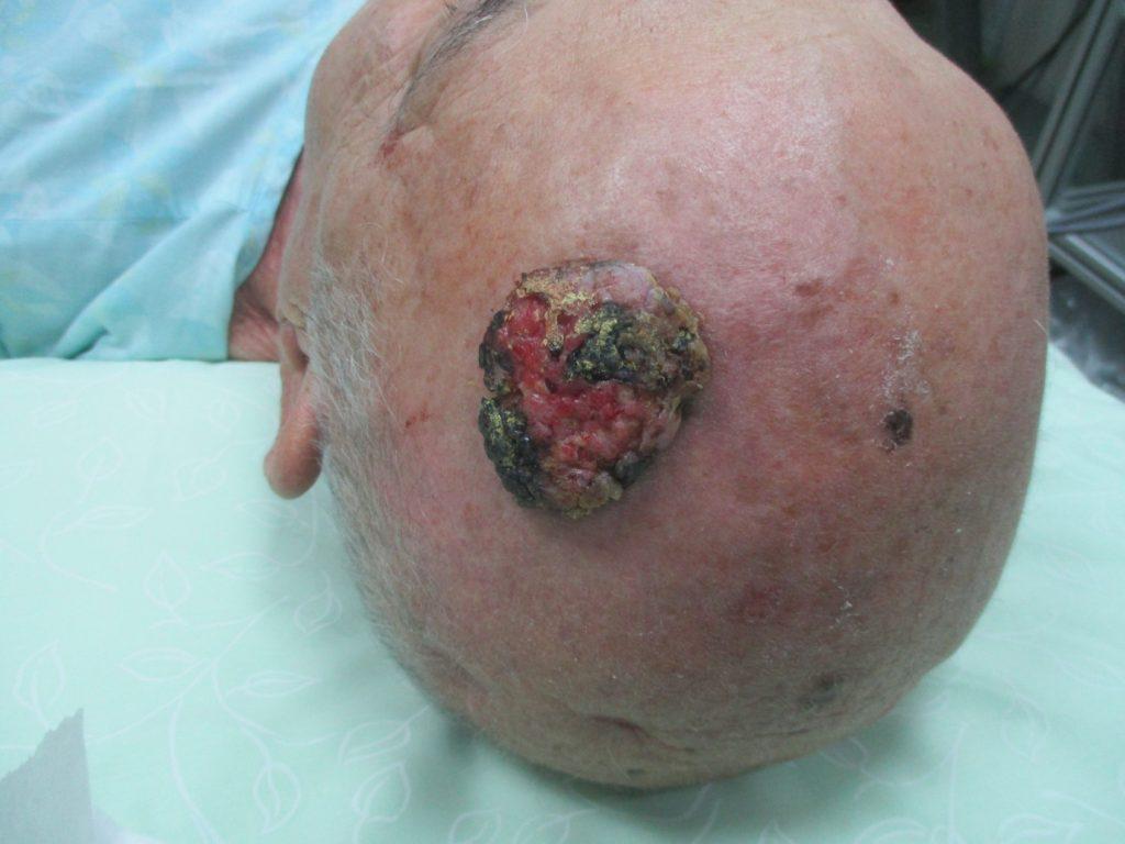 גידול תאי קשקש בקרקפת - לפני ניתוח מוהס