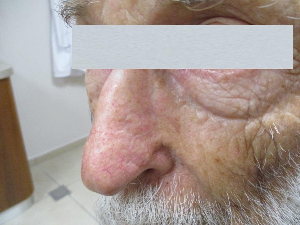 גידול סרטני על כנף האף - אחרי ניתוח מוז ושחזור