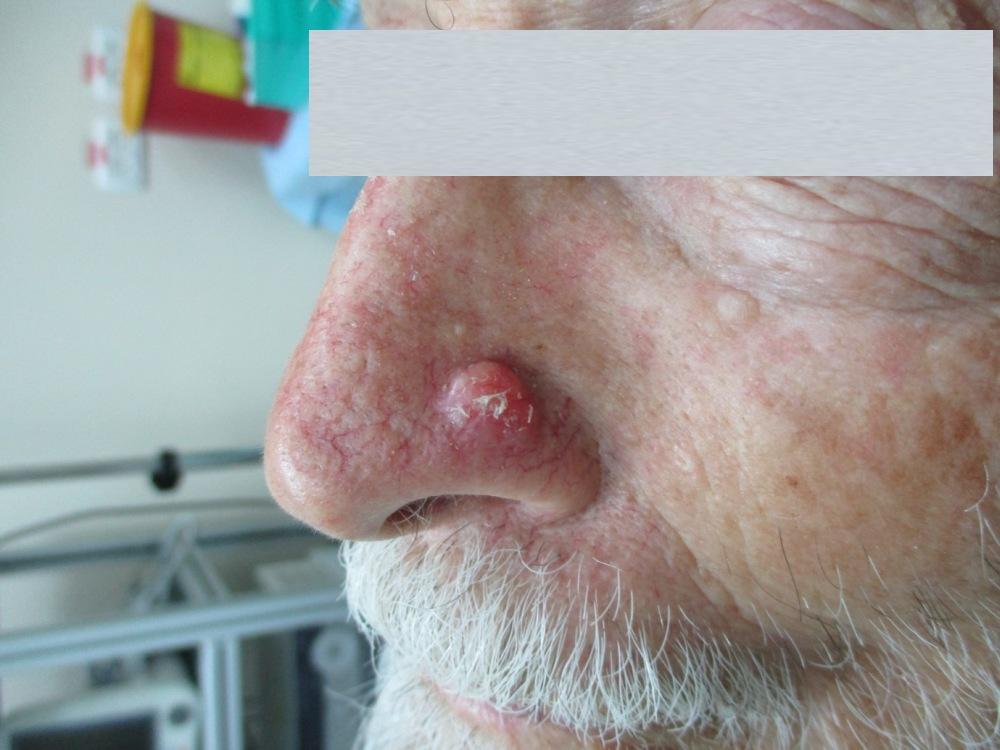 גידול סרטני על כנף האף - לפני ניתוח