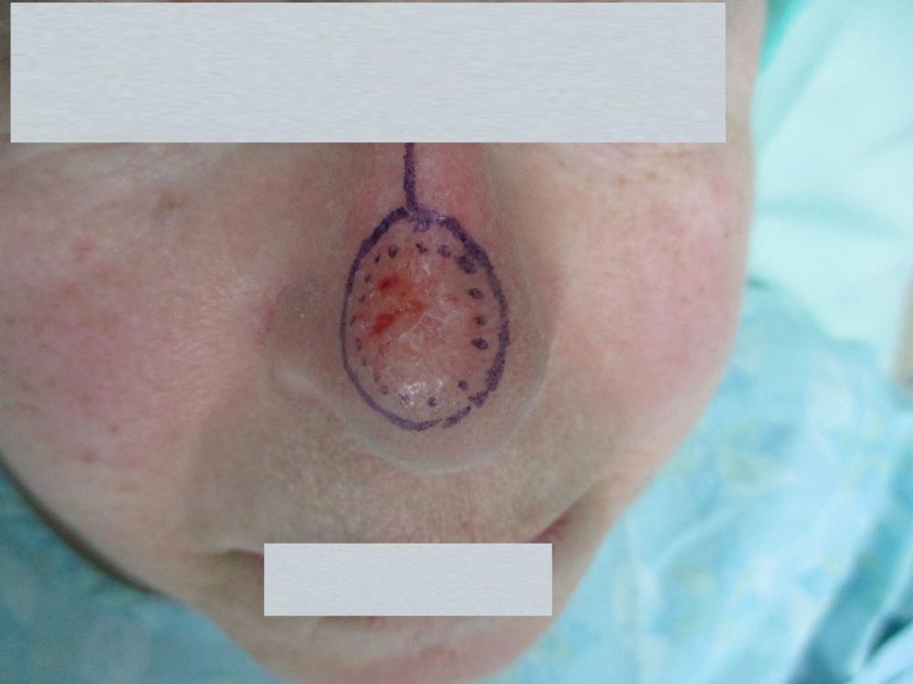 גידול סרטני גדול על האף - לפני ניתוח מוז