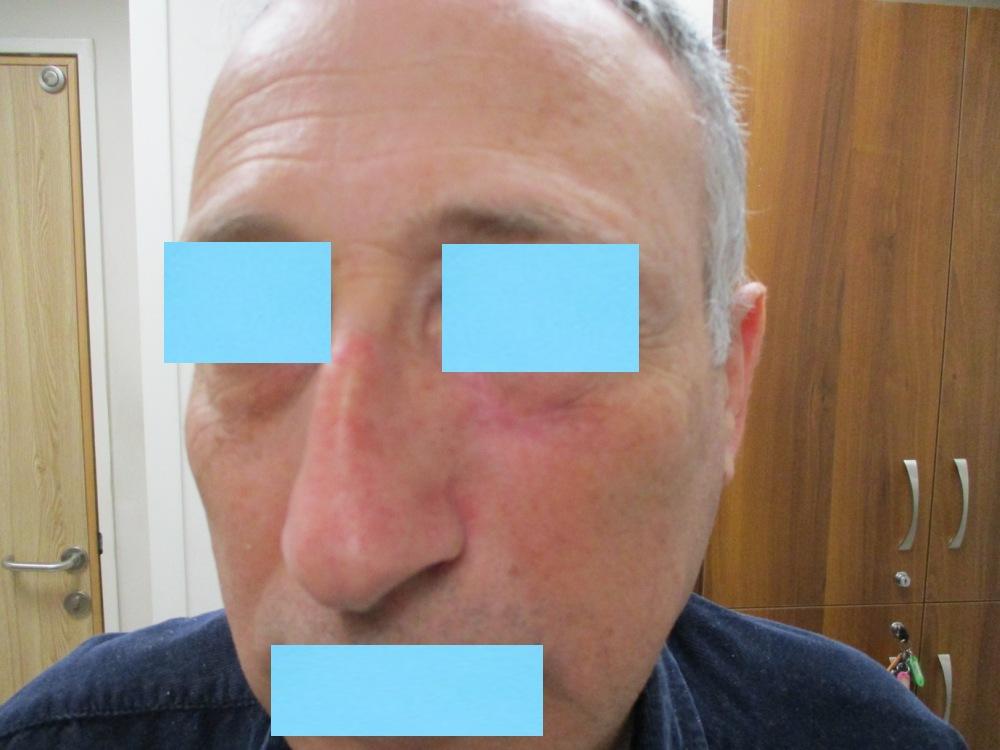 תמונה אחרי הניתוח והשחזור